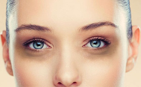 Under Eye Creams for Dark Circles