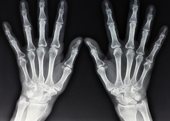 X –Ray