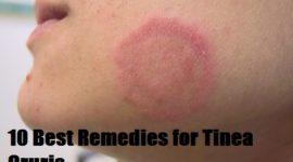 Remedies for Tinea Cruris