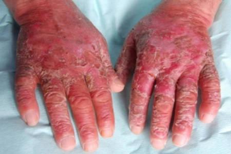 The Pellagra Disease Is Characterized By Four Signs Dementia Diarrhea Dermatitis And Death You Do Not Have To Wait For Someone Die Just Know He